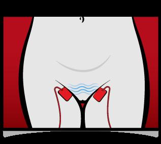 Electrosex pad placement